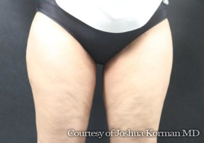 Thigh Lift Before & After Patient #5921