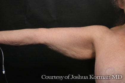 Arm Lift Before & After Patient #6024