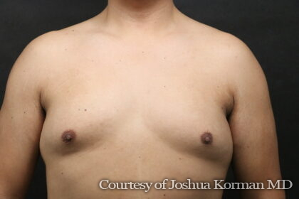 Male Breast Reduction (Gynecomastia) Before & After Patient #6300