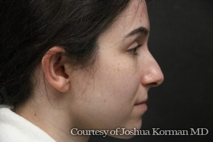 Rhinoplasty Before & After Patient #6342
